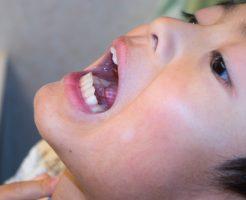 のどの痛み 扁桃腺 子供